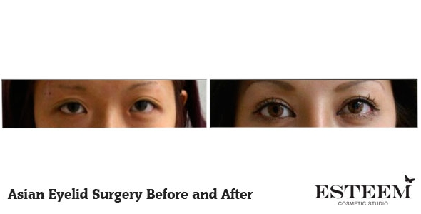 asian-eyelid-before-and-after-1