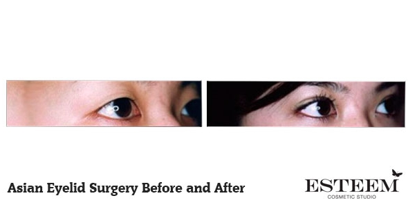 asian-eyelid-before-and-after-2