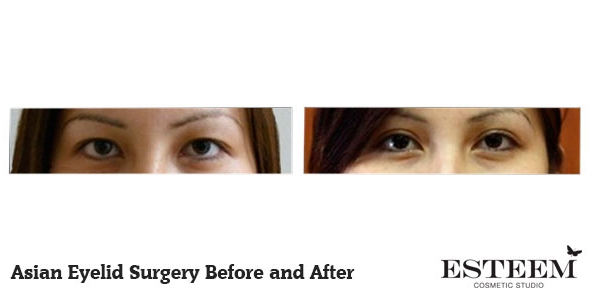asian-eyelid-before-and-after-3