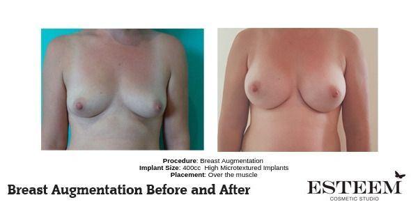 Procedure_-Breast-Augmentation_1