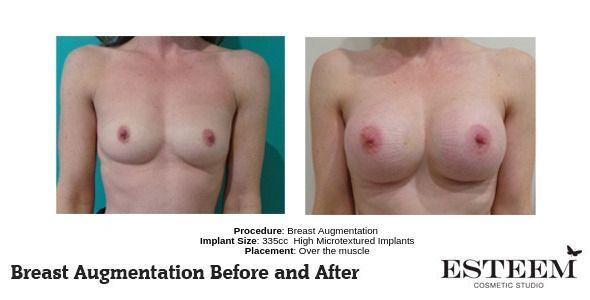 Procedure_-Breast-Augmentation_2