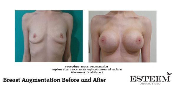 Procedure_-Breast-Augmentation_3