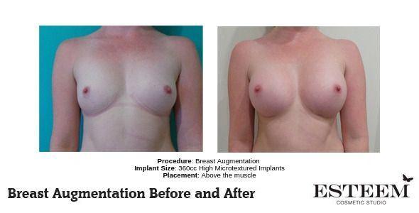 Procedure_-Breast-Augmentation_4