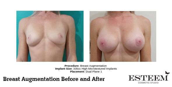 Procedure_-Breast-Augmentation_6