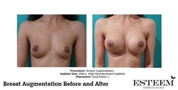 Procedure_-Breast-Augmentation_7