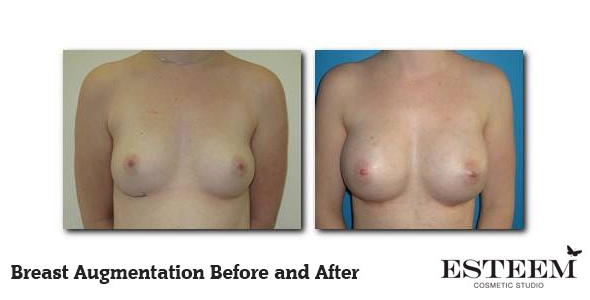 breast-augmentation-before-and-after-1