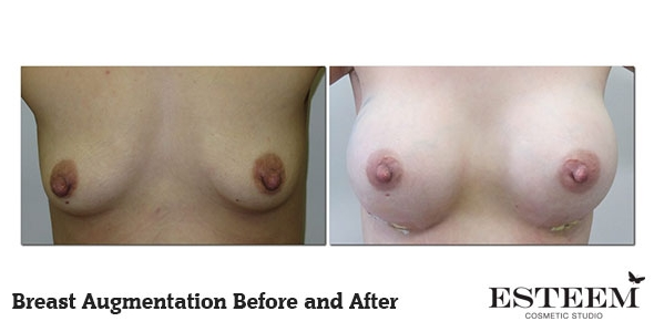 breast-augmentation-before-and-after-10