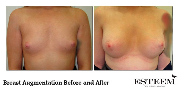 breast-augmentation-before-and-after-12b-ver2