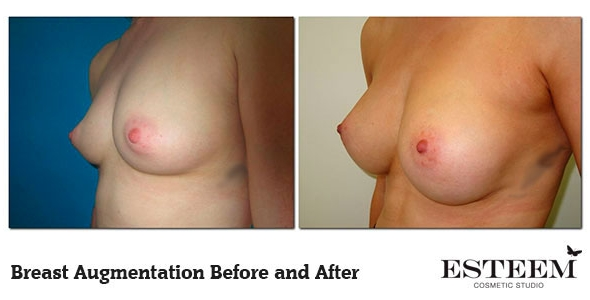 breast-augmentation-before-and-after-13b