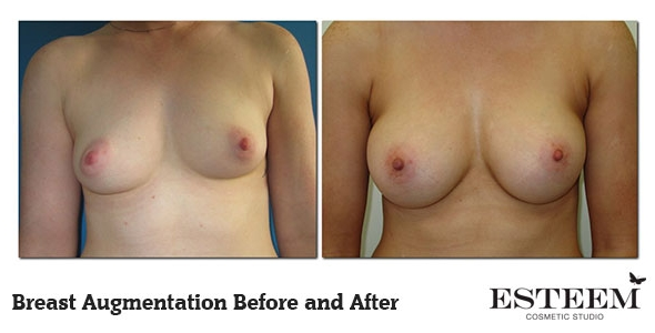 breast-augmentation-before-and-after-14