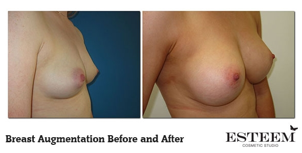 breast-augmentation-before-and-after-15