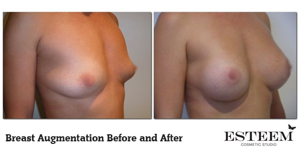 breast-augmentation-before-and-after-17