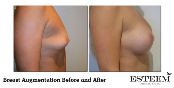 breast-augmentation-before-and-after-19