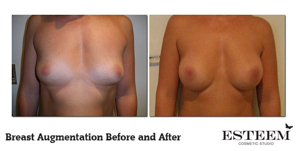 breast-augmentation-before-and-after-20