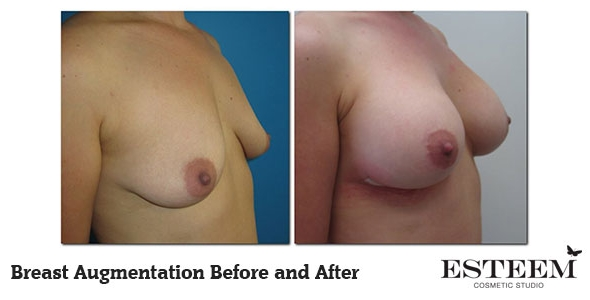 breast-augmentation-before-and-after-21