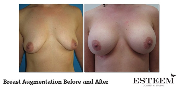 breast-augmentation-before-and-after-23