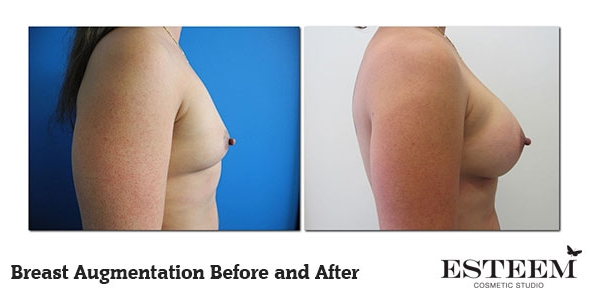 breast-augmentation-before-and-after-25