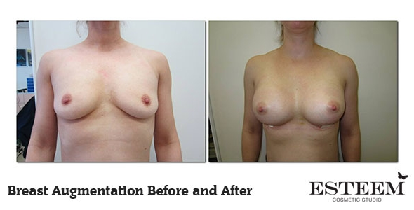 breast-augmentation-before-and-after-26