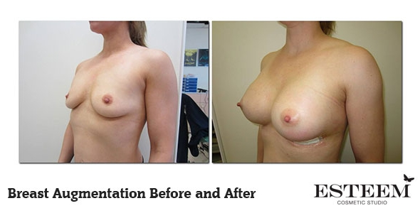 breast-augmentation-before-and-after-27
