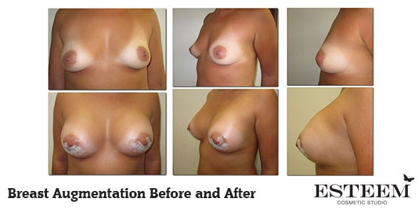 breast-augmentation-before-and-after-28