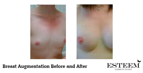 breast-augmentation-before-and-after-29