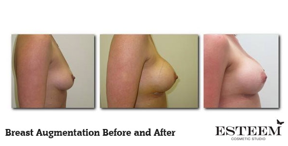breast-augmentation-before-and-after-3