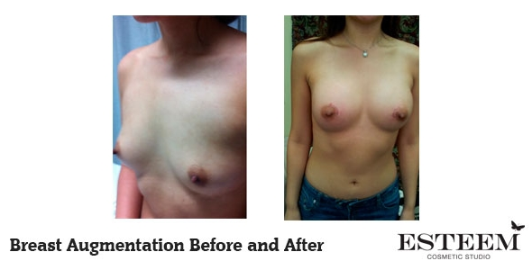 breast-augmentation-before-and-after-30