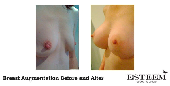 breast-augmentation-before-and-after-31
