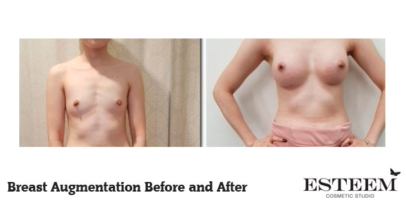 breast-augmentation-before-and-after-33