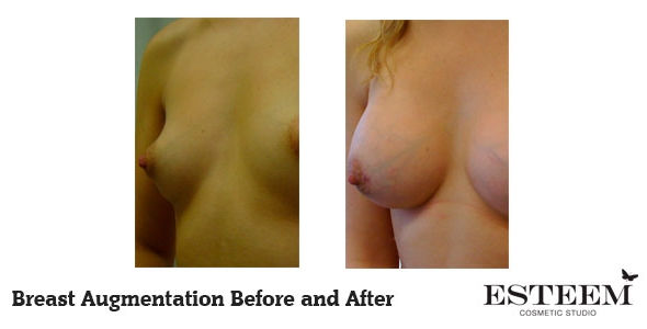breast-augmentation-before-and-after-34