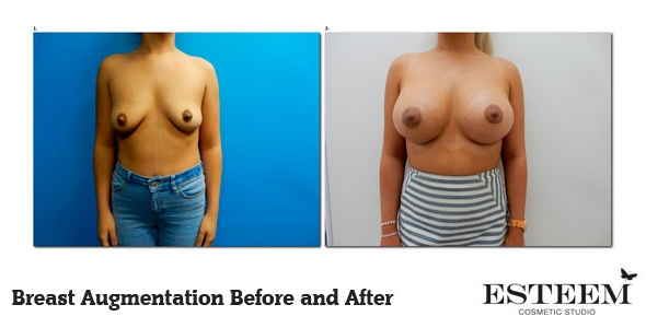 breast-augmentation-before-and-after-35