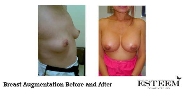 breast-augmentation-before-and-after-35-ver2