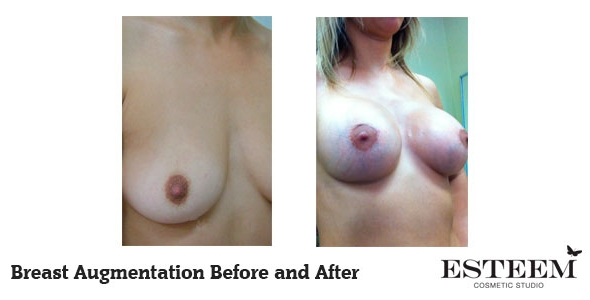 breast-augmentation-before-and-after-36