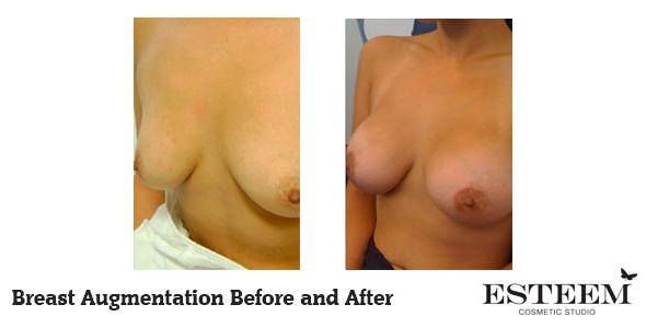 breast-augmentation-before-and-after-37