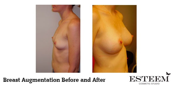 breast-augmentation-before-and-after-38-ver2
