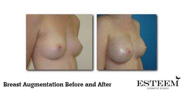 breast-augmentation-before-and-after-4