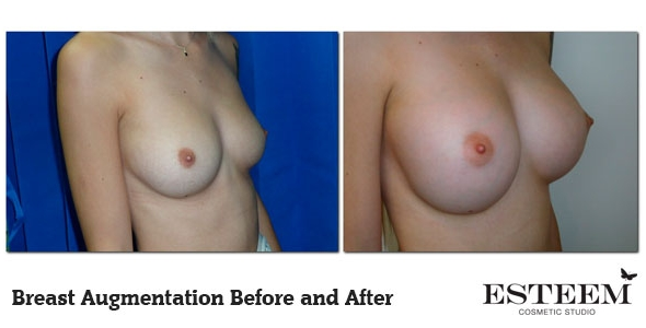 breast-augmentation-before-and-after-41