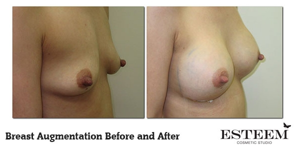 breast-augmentation-before-and-after-8