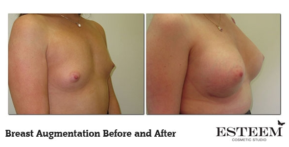 breast-augmentation-before-and-after-9
