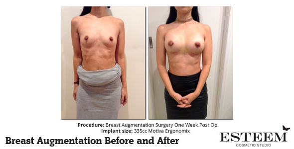 esteem-breast-augmentation-before-and-after-37a