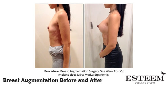 esteem-breast-augmentation-before-and-after-37b