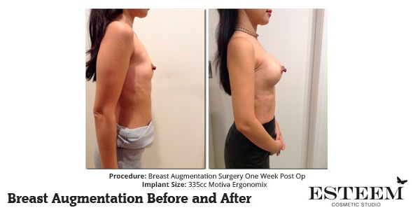 esteem-breast-augmentation-before-and-after-37c