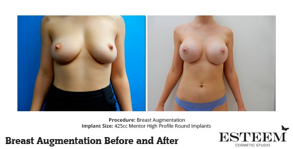 esteem-breast-augmentation-before-and-after-39a