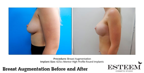 esteem-breast-augmentation-before-and-after-39b