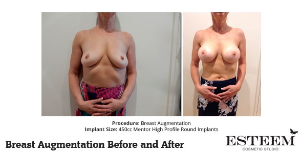 esteem-breast-augmentation-before-and-after-40a