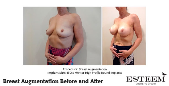 esteem-breast-augmentation-before-and-after-40b