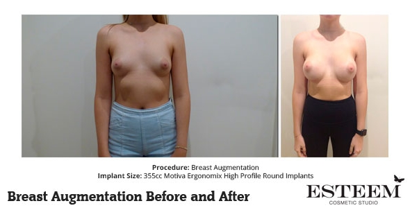 esteem-breast-augmentation-before-and-after-41a