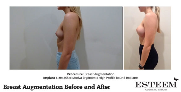 esteem-breast-augmentation-before-and-after-41b
