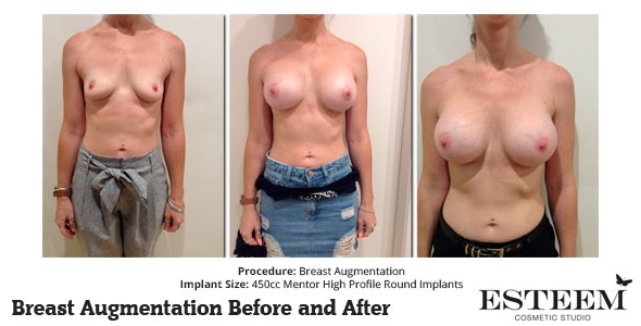 esteem-breast-augmentation-before-and-after-43a