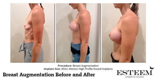 esteem-breast-augmentation-before-and-after-43b